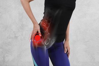 Il dolore all'anca del corridore